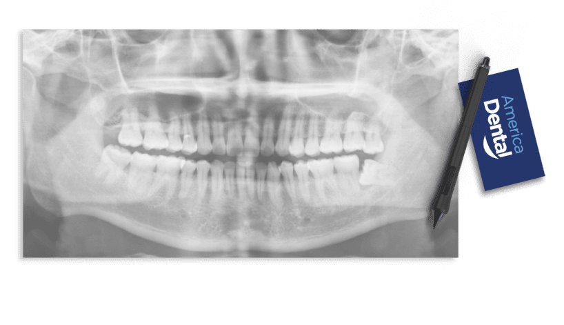America Dental X-Ray