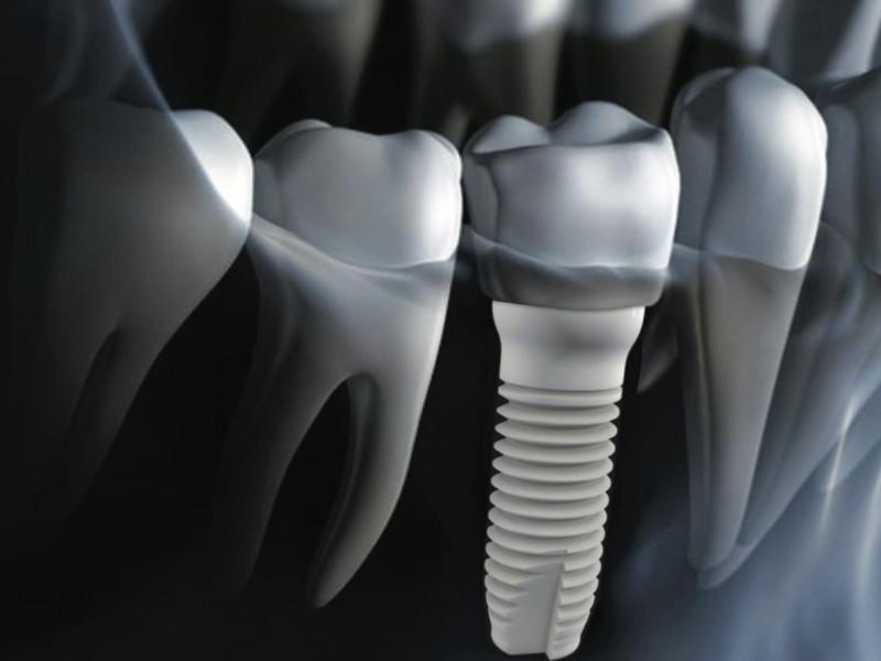 Zirconium Dental Implant Costa Rica