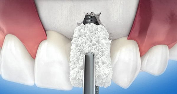 Bonegraft and Membrane
