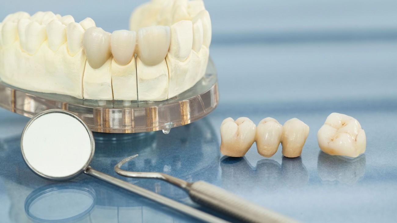 Dental Bridge Zirconium