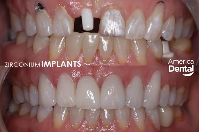 Zirconio Dental Implants Restoration